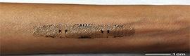 Sensores electrónicos impresos directamente sobre la piel en pro de la salud
