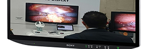 Sony LMD-X550MT and LMD-X310MT: surgical monitors with 4K and 3D technologies