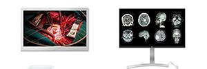 LG se introduce en el mercado de imágenes médicas con la presentación de dos monitores 8MP